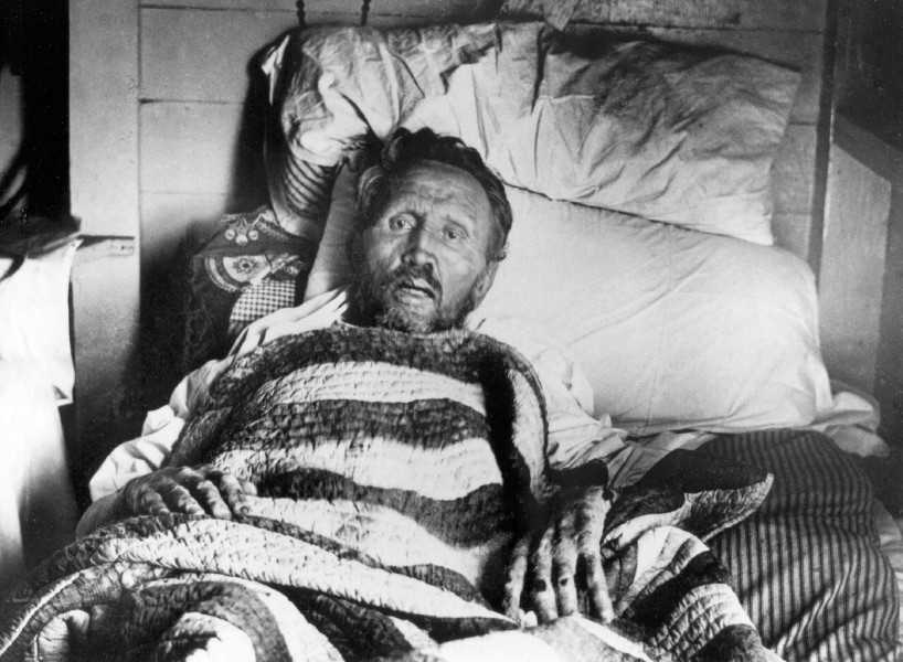Father-Damien-on-his-deathbed.jpg